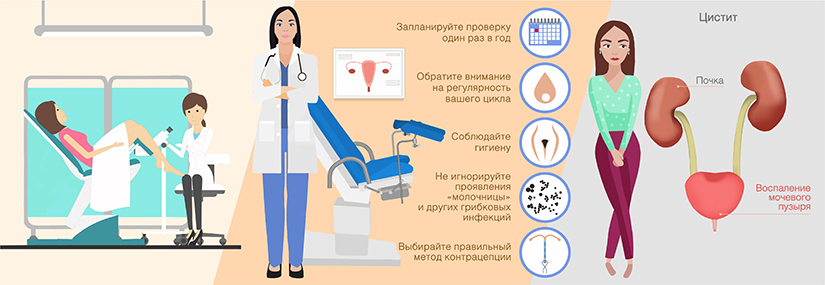 Гинеколог - возникновении болей внизу живота